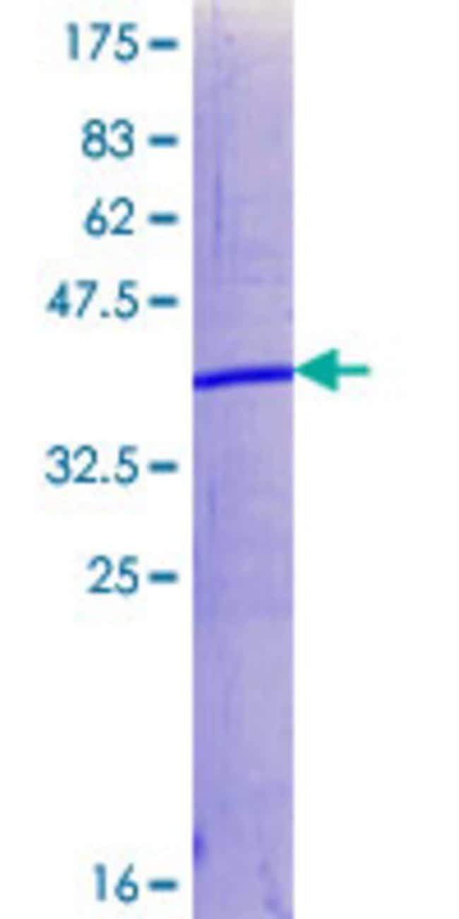 AbnovaHuman SUZ12 Partial ORF (NP_056170.1, 640 a.a. - 739 a.a.) Recombinant