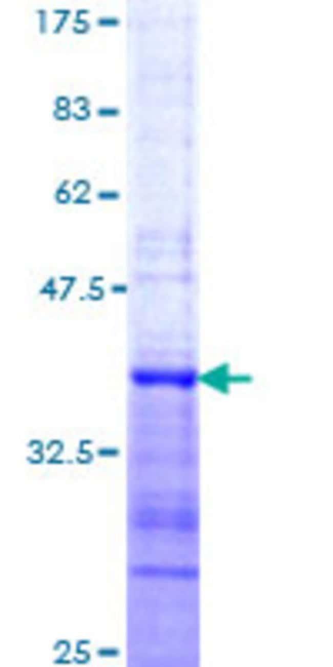 AbnovaHuman MYST4 Partial ORF (NP_036462, 80 a.a. - 172 a.a.) Recombinant