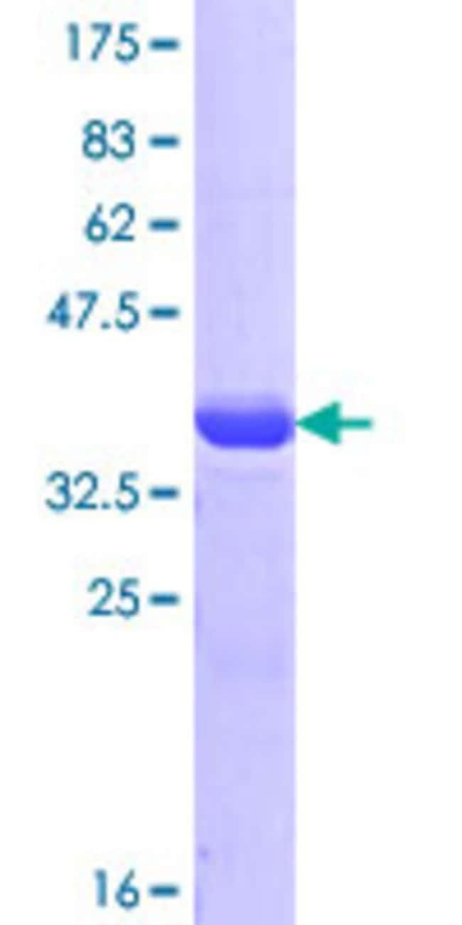 Abnova™Human HMHA1 Partial ORF (AAH65223.1, 91 a.a. - 190 a.a.) Recombinant Protein with GST-tag at N-terminal 10μg Abnova™Human HMHA1 Partial ORF (AAH65223.1, 91 a.a. - 190 a.a.) Recombinant Protein with GST-tag at N-terminal
