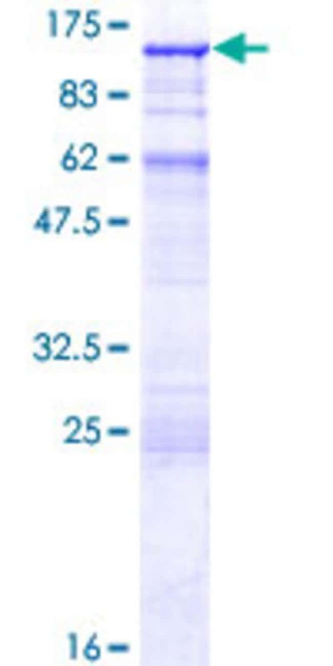AbnovaHuman CENTB2 Full-length ORF (NP_036419.2, 1 a.a. - 778 a.a.) Recombinant
