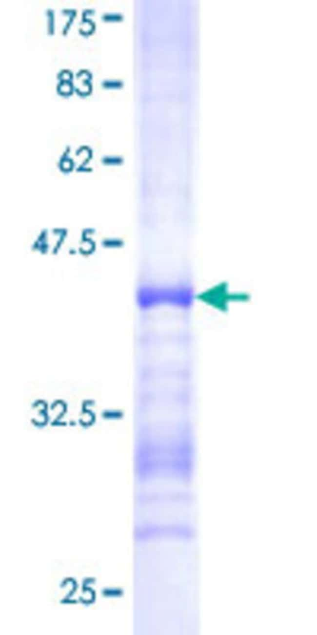 AbnovaHuman CENTB2 Partial ORF (NP_036419, 473 a.a. - 581 a.a.) Recombinant