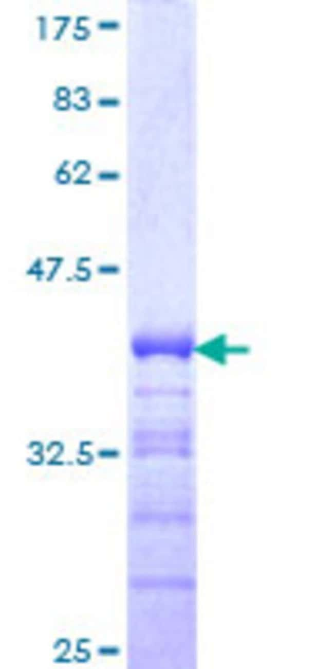 AbnovaHuman ZNF281 Partial ORF (NP_036614, 787 a.a. - 893 a.a.) Recombinant