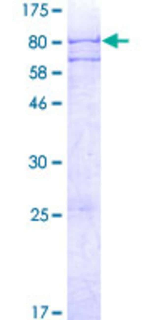 AbnovaHuman ADAT1 Full-length ORF (AAH02758.1, 1 a.a. - 502 a.a.) Recombinant