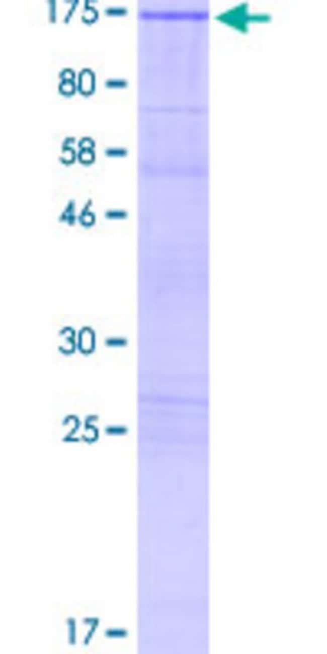 AbnovaHuman MAPK8IP2 Full-length ORF (AAH47527.1, 1 a.a. - 824 a.a.) Recombinant