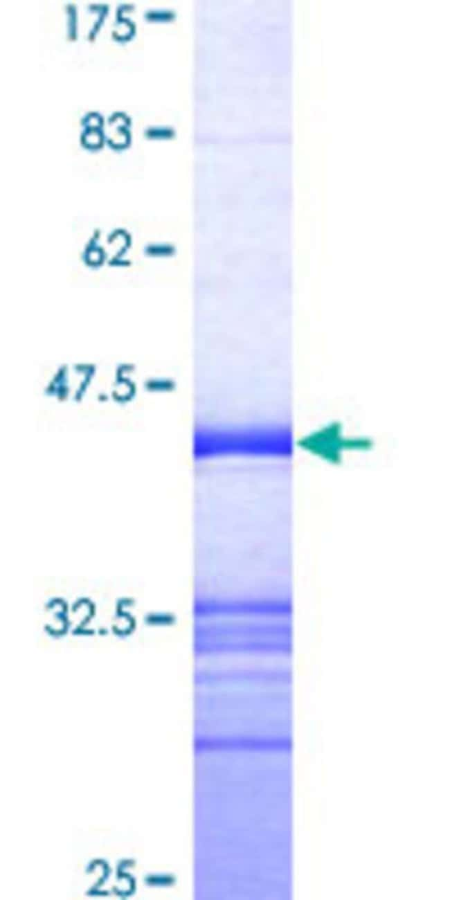 AbnovaHuman MAPK8IP2 Partial ORF (AAH47527, 121 a.a. - 220 a.a.) Recombinant