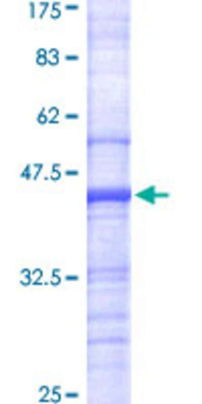 Abnova™Human ATP6V0A2 Partial ORF (NP_036595, 198 a.a. - 304 a.a.) Recombinant Protein with GST-tag at N-terminal 10μg Abnova™Human ATP6V0A2 Partial ORF (NP_036595, 198 a.a. - 304 a.a.) Recombinant Protein with GST-tag at N-terminal