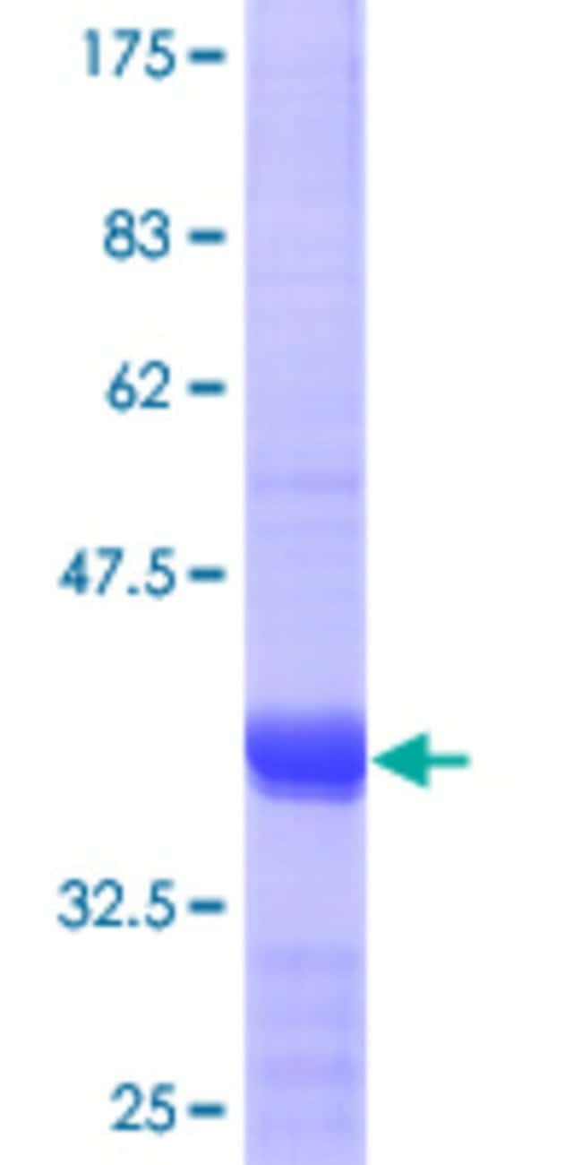 Abnova™Human SNAPAP Partial ORF (NP_036569.1, 41 a.a. - 136 a.a.) Recombinant Protein with GST-tag at N-terminal 10μg Abnova™Human SNAPAP Partial ORF (NP_036569.1, 41 a.a. - 136 a.a.) Recombinant Protein with GST-tag at N-terminal