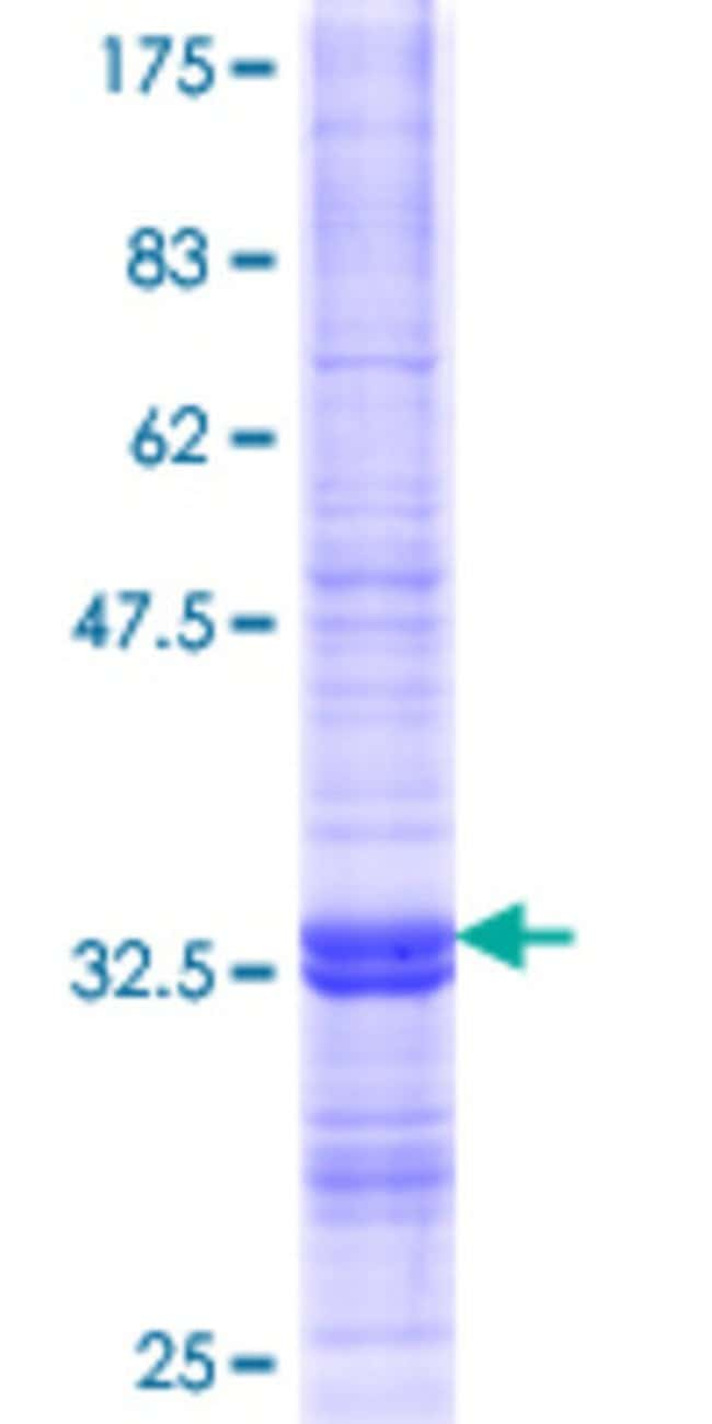 Abnova™Human CHST5 Partial ORF (NP_036258.1, 310 a.a. - 390 a.a.) Recombinant Protein with GST-tag at N-terminal 25μg Abnova™Human CHST5 Partial ORF (NP_036258.1, 310 a.a. - 390 a.a.) Recombinant Protein with GST-tag at N-terminal
