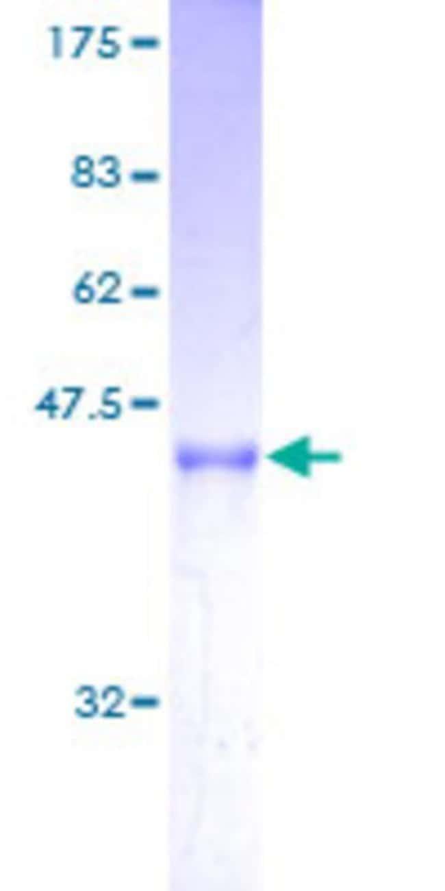 AbnovaHuman ARL2BP Full-length ORF (AAH03087, 1 a.a. - 163 a.a.) Recombinant