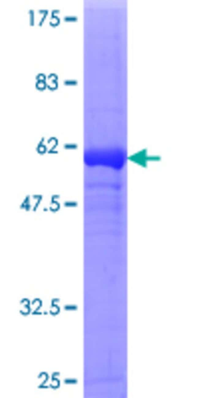 AbnovaHuman DDAH1 Full-length ORF (NP_036269.1, 1 a.a. - 285 a.a.) Recombinant