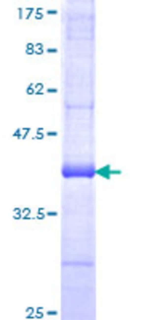 AbnovaHuman CASP14 Partial ORF (NP_036246, 133 a.a. - 242 a.a.) Recombinant
