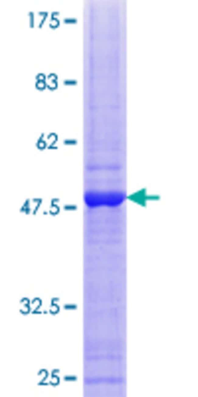 AbnovaHuman SMUG1 Full-length ORF (AAH00417.1, 1 a.a. - 177 a.a.) Recombinant