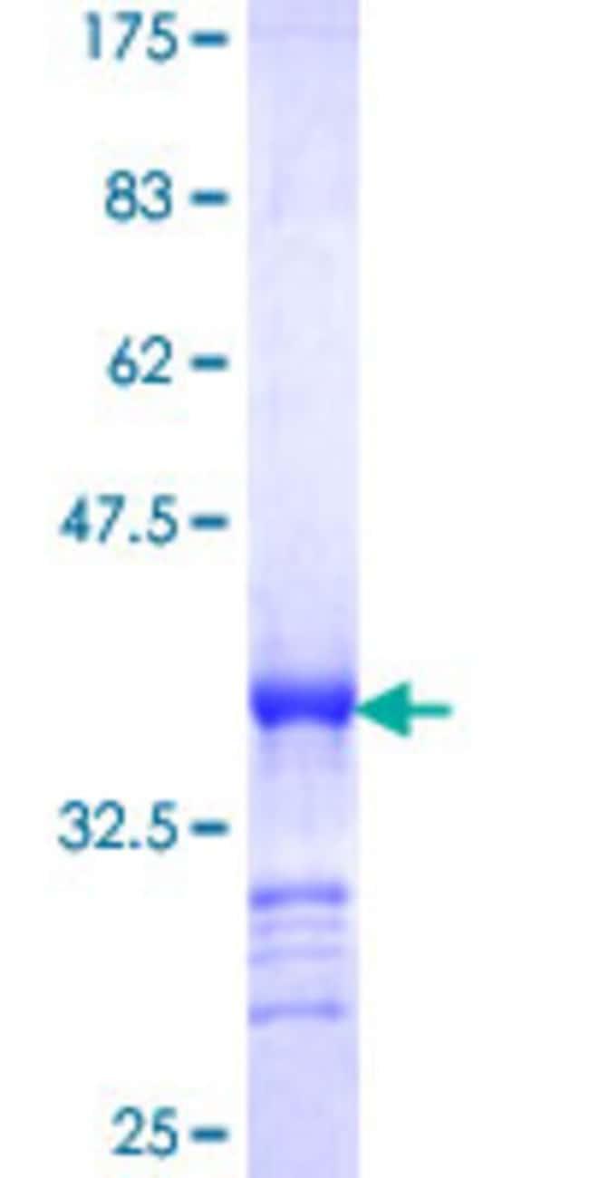 AbnovaHuman SMUG1 Partial ORF (NP_055126, 2 a.a. - 78 a.a.) Recombinant