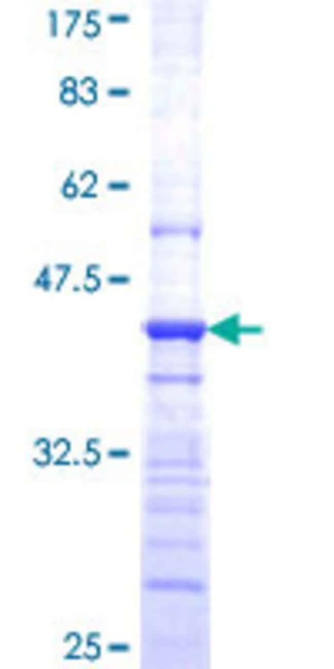 AbnovaHuman HEBP2 Partial ORF (NP_055135, 96 a.a. - 205 a.a.) Recombinant