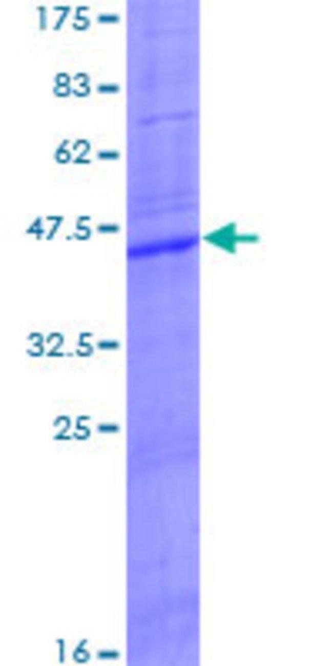 AbnovaHuman CLEC5A Full-length ORF (NP_037384.1, 1 a.a. - 188 a.a.) Recombinant