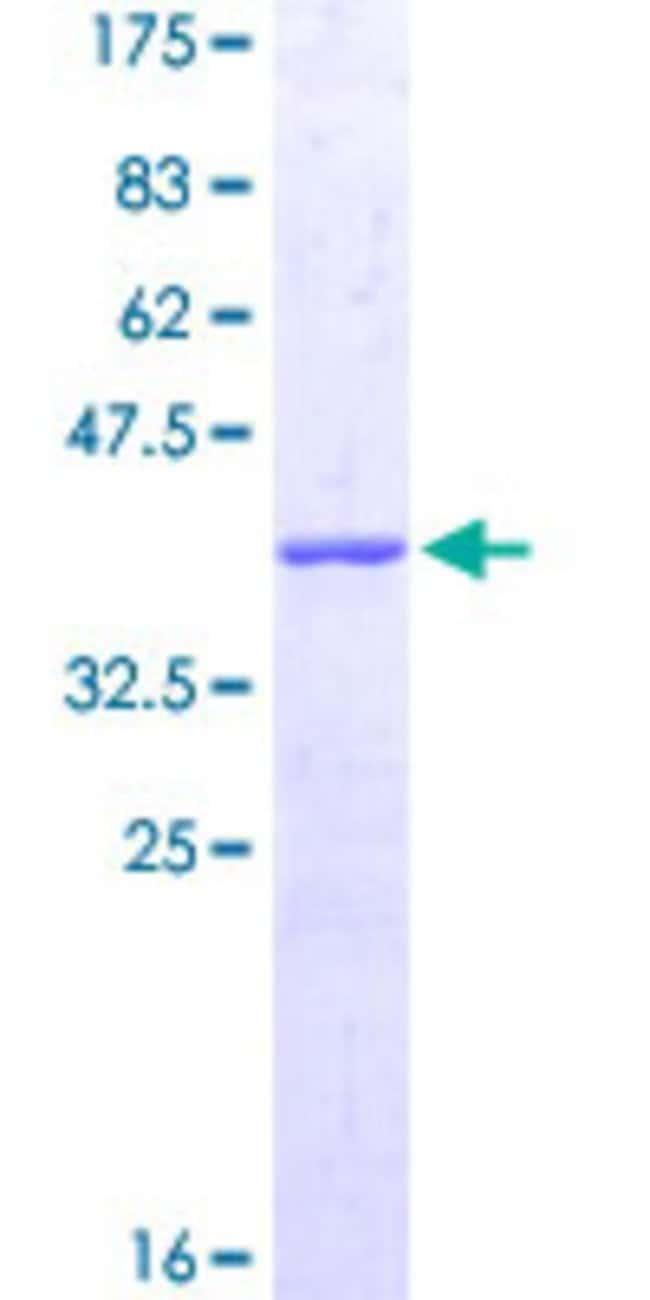 AbnovaHuman CORO1C Partial ORF (NP_055140, 375 a.a. - 473 a.a.) Recombinant