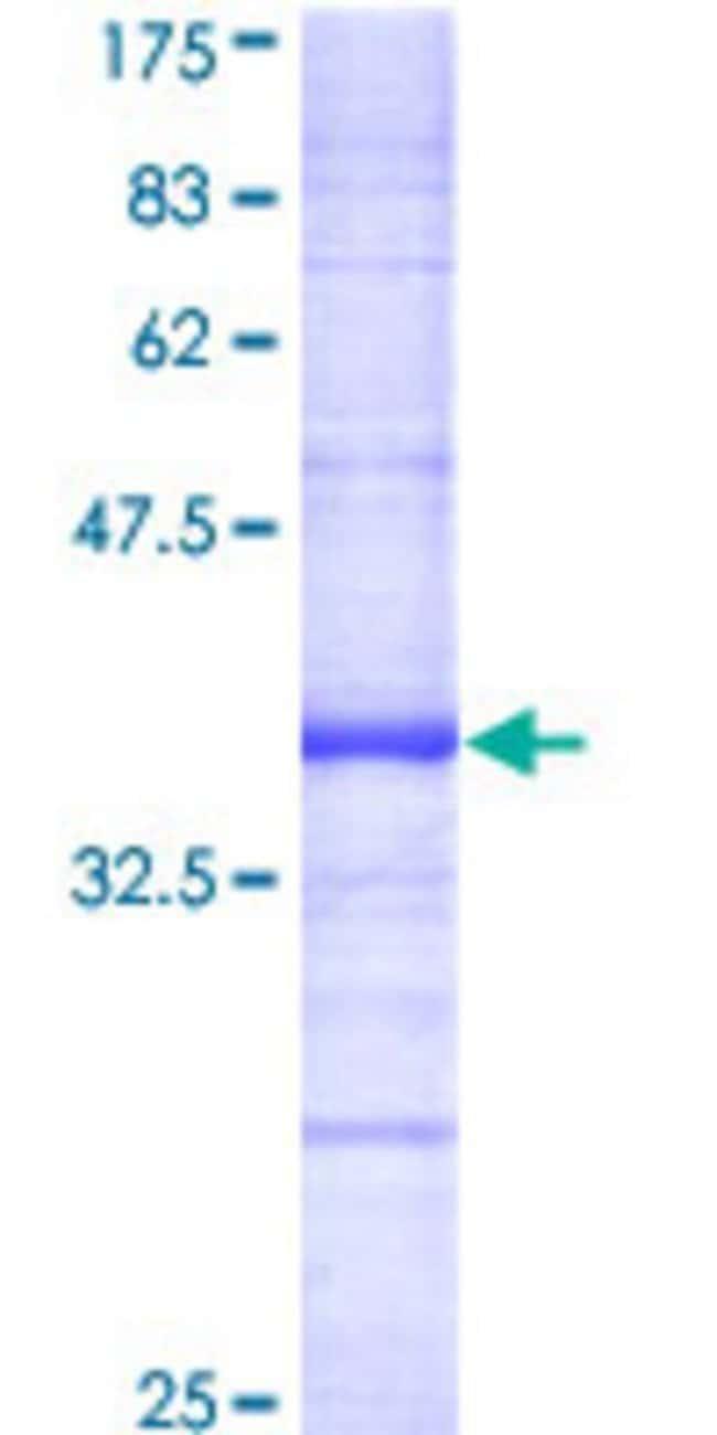 AbnovaHuman DAPK2 Partial ORF (AAC35001, 281 a.a. - 370 a.a.) Recombinant