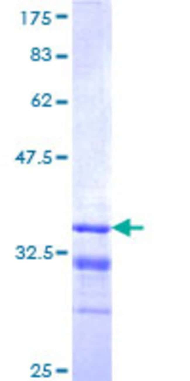 AbnovaHuman MKRN1 Partial ORF (NP_038474, 365 a.a. - 440 a.a.) Recombinant