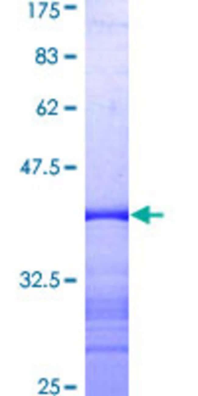 AbnovaHuman TSSK2 Partial ORF (AAH37781, 265 a.a. - 358 a.a.) Recombinant