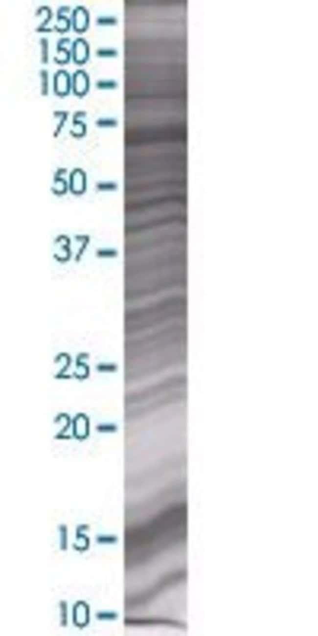 Abnova ZIM2 293T Cell Transient Overexpression Lysate (Denatured) 100µL:Life