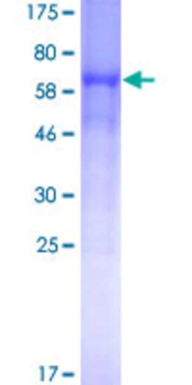 AbnovaHuman BACE1 Full-length ORF (AAH65492, 22 a.a. - 501 a.a.) Recombinant