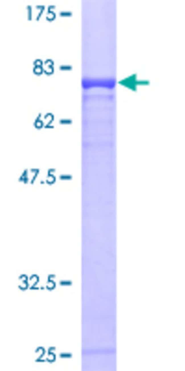 AbnovaHuman CBLC Full-length ORF (AAH28915, 1 a.a. - 474 a.a.) Recombinant
