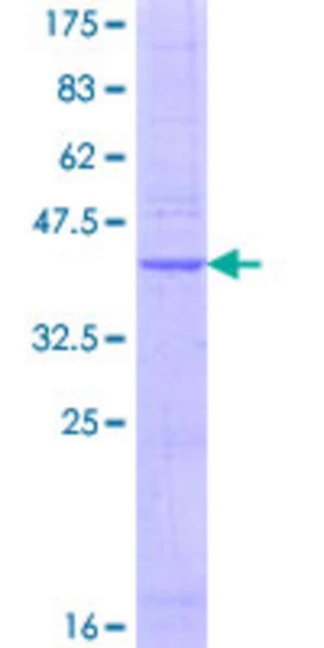 Abnova™Human PRND Full-length ORF (AAH43644.1, 27 a.a. - 176 a.a.) Recombinant Protein with GST-tag at N-terminal 25μg Abnova™Human PRND Full-length ORF (AAH43644.1, 27 a.a. - 176 a.a.) Recombinant Protein with GST-tag at N-terminal