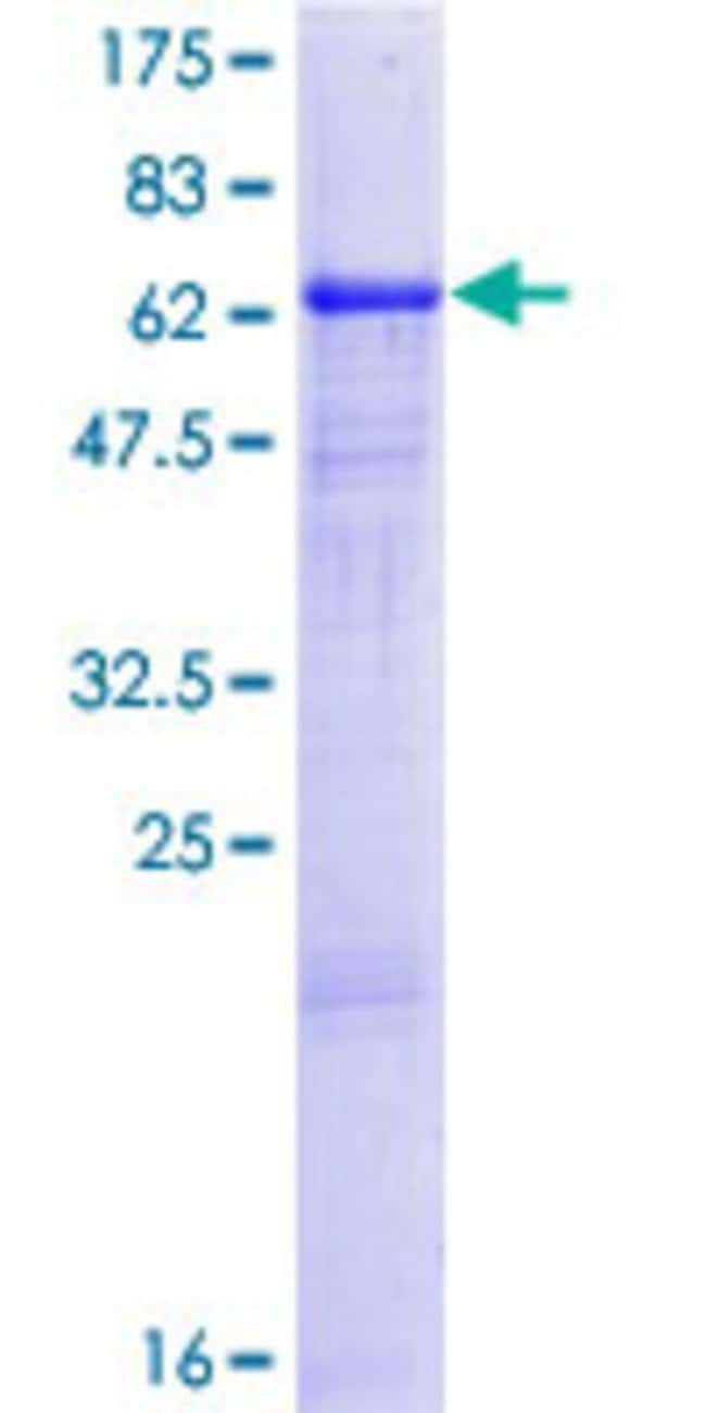 AbnovaHuman CA14 Full-length ORF (NP_036245.1, 1 a.a. - 337 a.a.) Recombinant