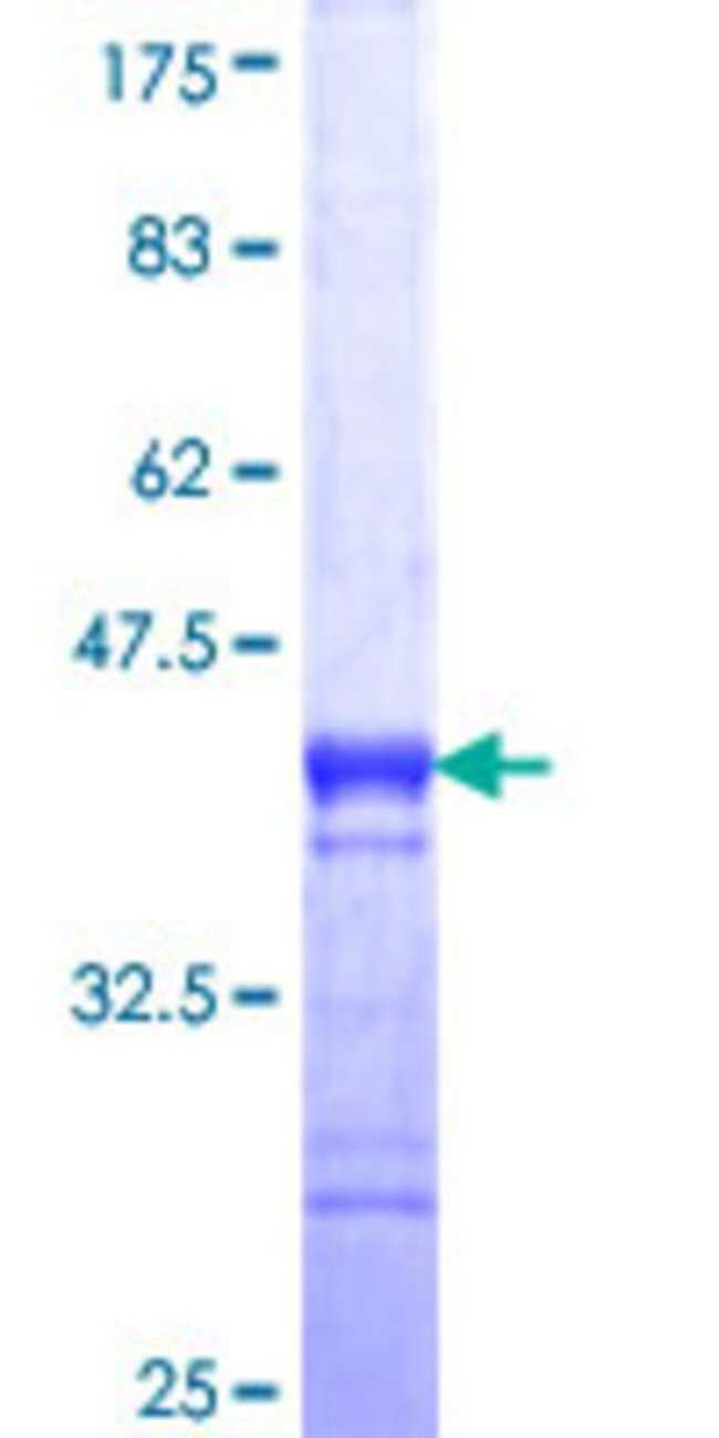 AbnovaHuman NUP62 Partial ORF (NP_714941, 423 a.a. - 522 a.a.) Recombinant