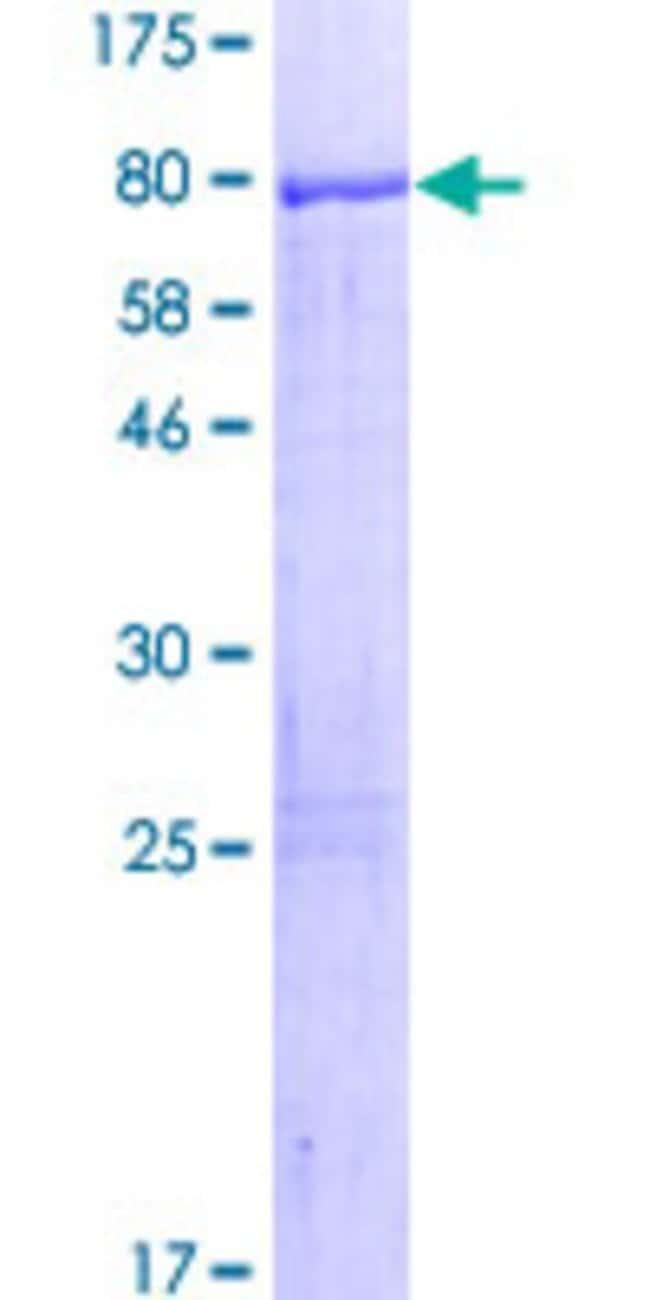 Abnova Human LRRC6 Full-length ORF (NP_036604.2, 1 a.a. - 466 a.a.) Recombinant