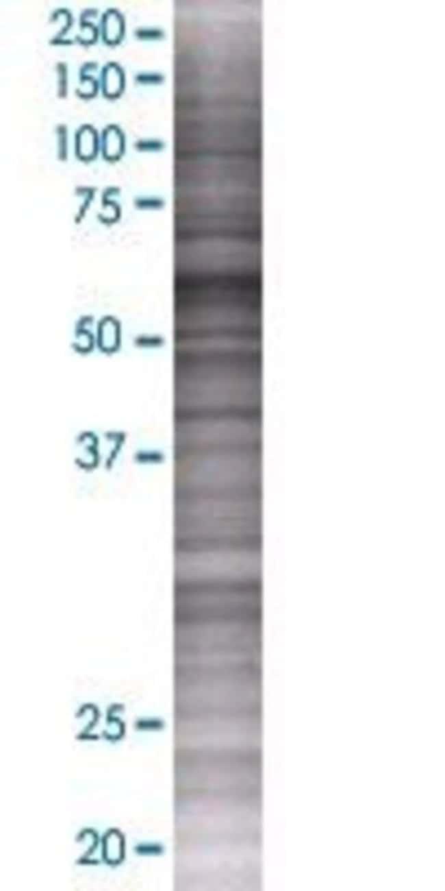 Abnova LRRC6 293T Cell Transient Overexpression Lysate (Denatured) (T01)