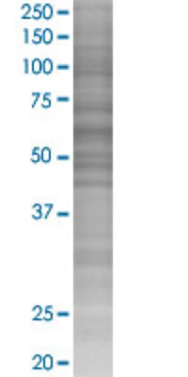 Abnova LRRC6 293T Cell Transient Overexpression Lysate (Denatured) (T02)