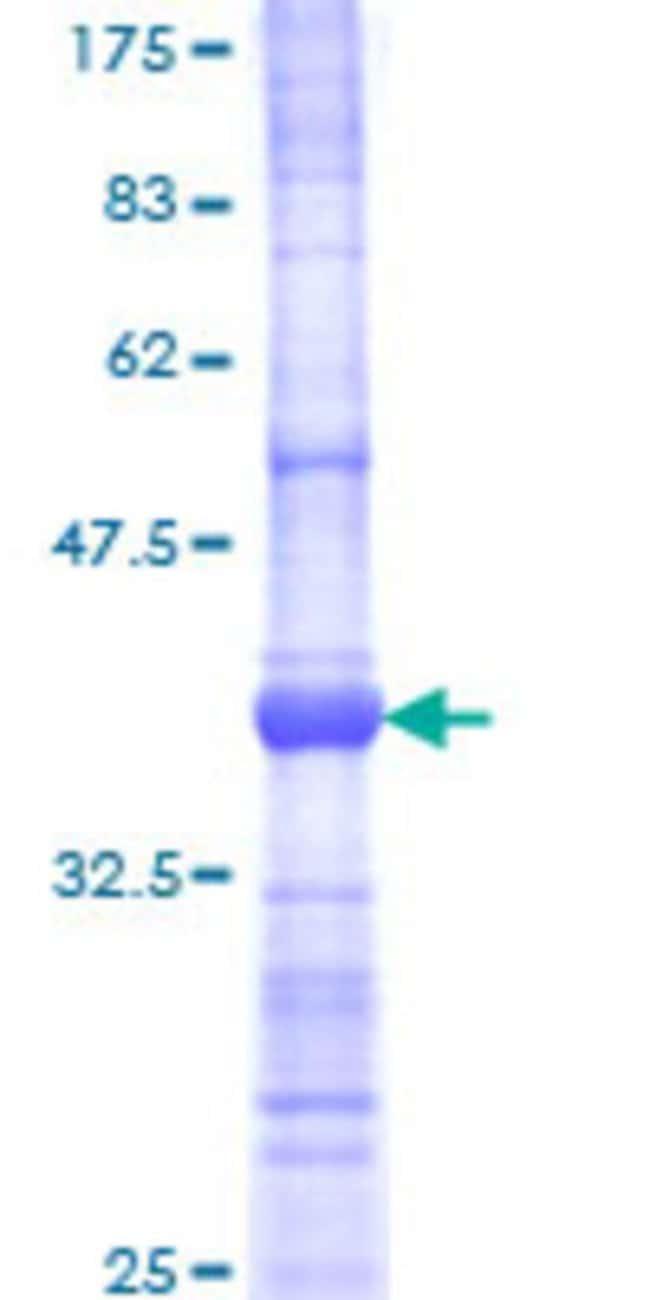 AbnovaHuman LDOC1 Partial ORF (NP_036449, 19 a.a. - 120 a.a.) Recombinant