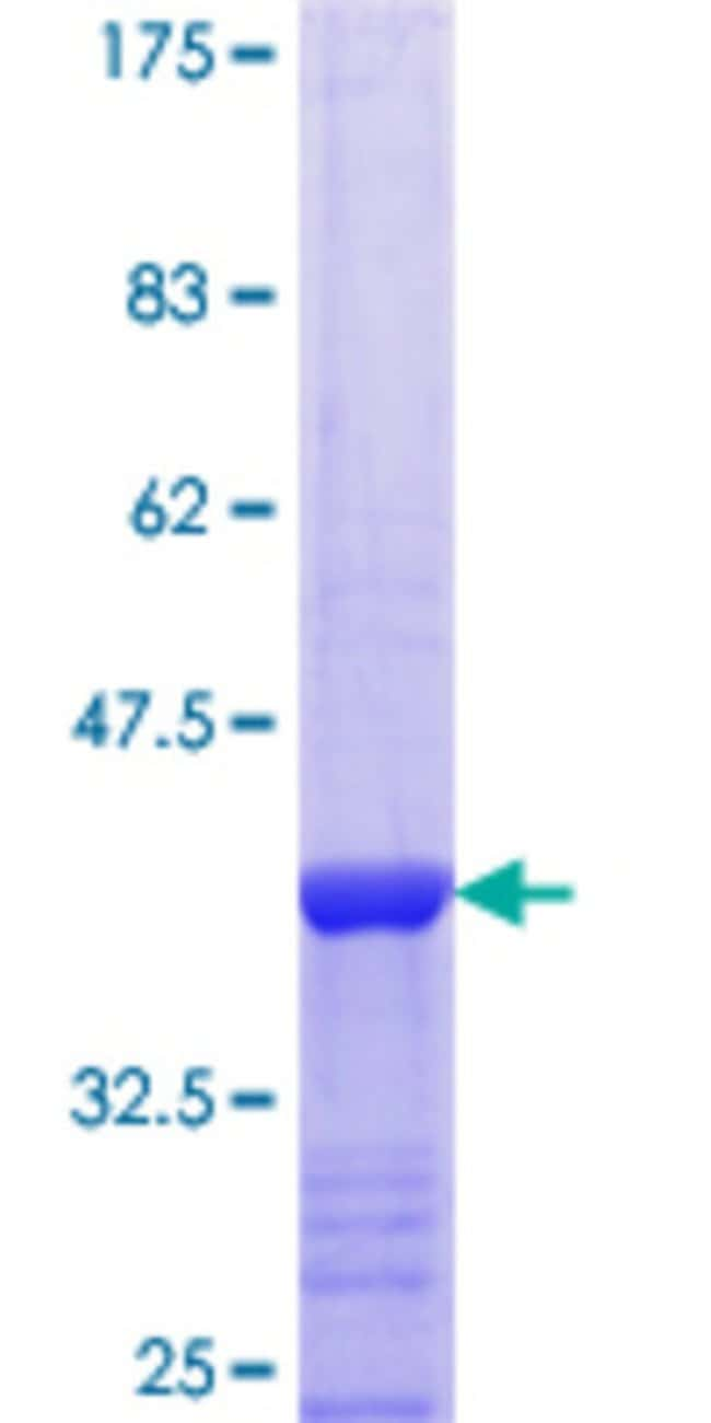 Abnova™Human RCD-8 Partial ORF (NP_055144.3, 1302 a.a. - 1401 a.a.) Recombinant Protein with GST-tag at N-terminal 25μg Abnova™Human RCD-8 Partial ORF (NP_055144.3, 1302 a.a. - 1401 a.a.) Recombinant Protein with GST-tag at N-terminal