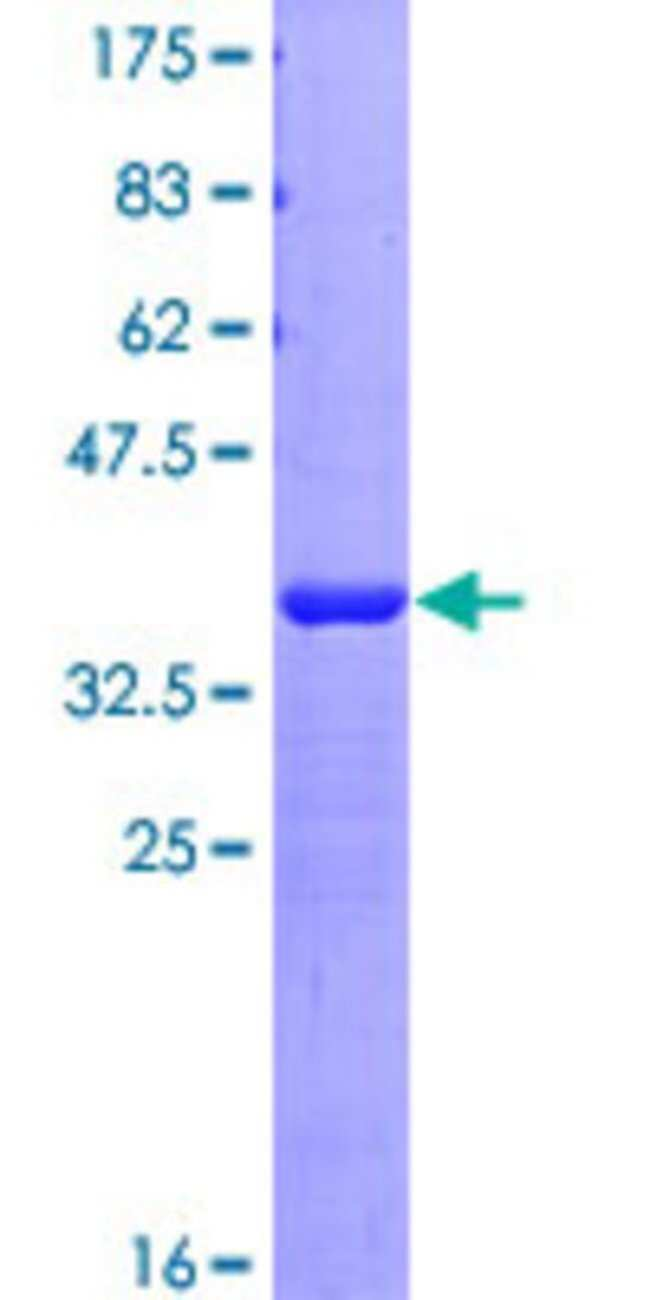 AbnovaHuman SSBP3 Partial ORF (NP_060540, 1 a.a. - 102 a.a.) Recombinant