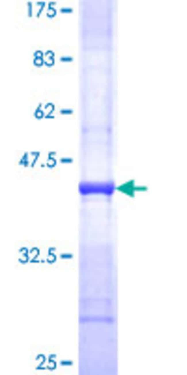 Abnova™Human PLXNB2 Partial ORF (XP_371474, 1506 a.a. - 1611 a.a.) Recombinant Protein with GST-tag at N-terminal 25μg Abnova™Human PLXNB2 Partial ORF (XP_371474, 1506 a.a. - 1611 a.a.) Recombinant Protein with GST-tag at N-terminal