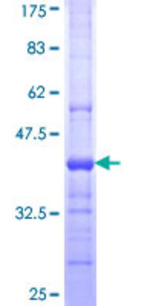 AbnovaHuman LYPLA3 Partial ORF (NP_036452, 314 a.a. - 412 a.a.) Recombinant