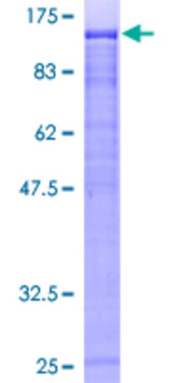 AbnovaHuman ZFP95 Full-length ORF (AAH30790, 1 a.a. - 839 a.a.) Recombinant