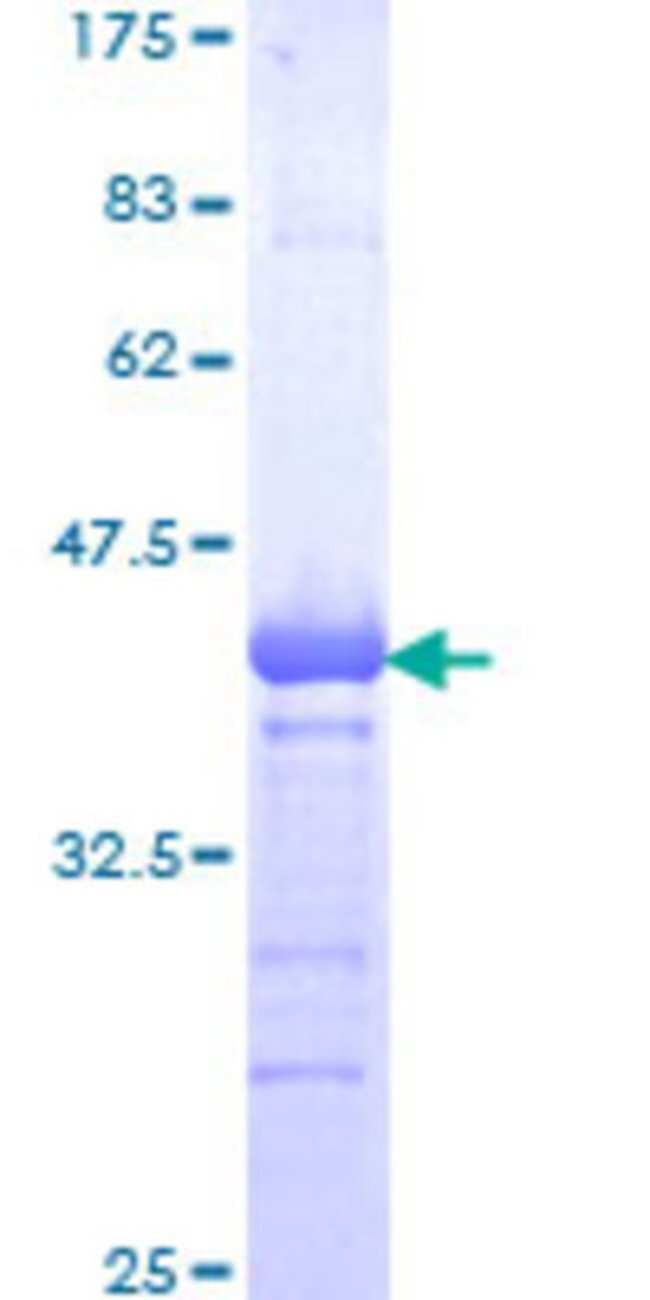 AbnovaHuman ZFP95 Partial ORF (NP_055384, 128 a.a. - 226 a.a.) Recombinant