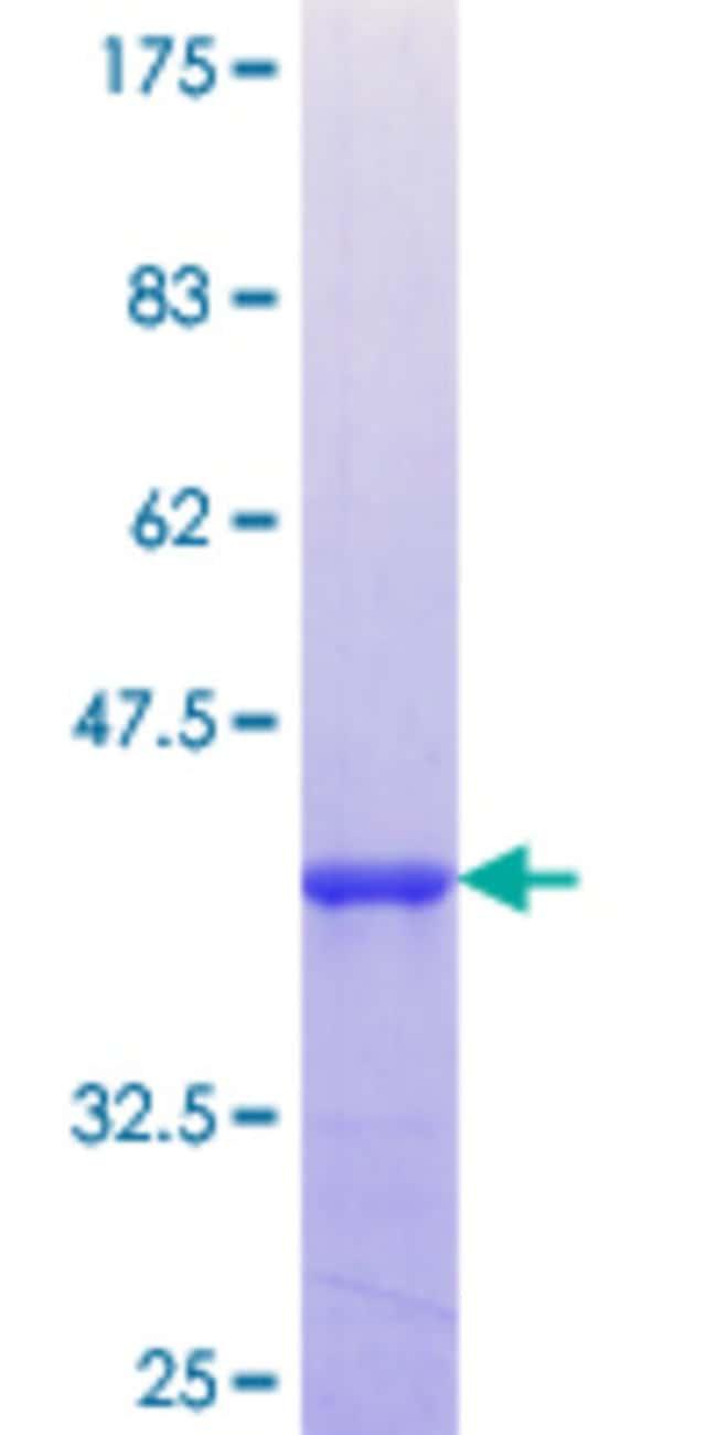 AbnovaHuman TMEFF2 Partial ORF (NP_057276.2, 201 a.a. - 292 a.a.) Recombinant