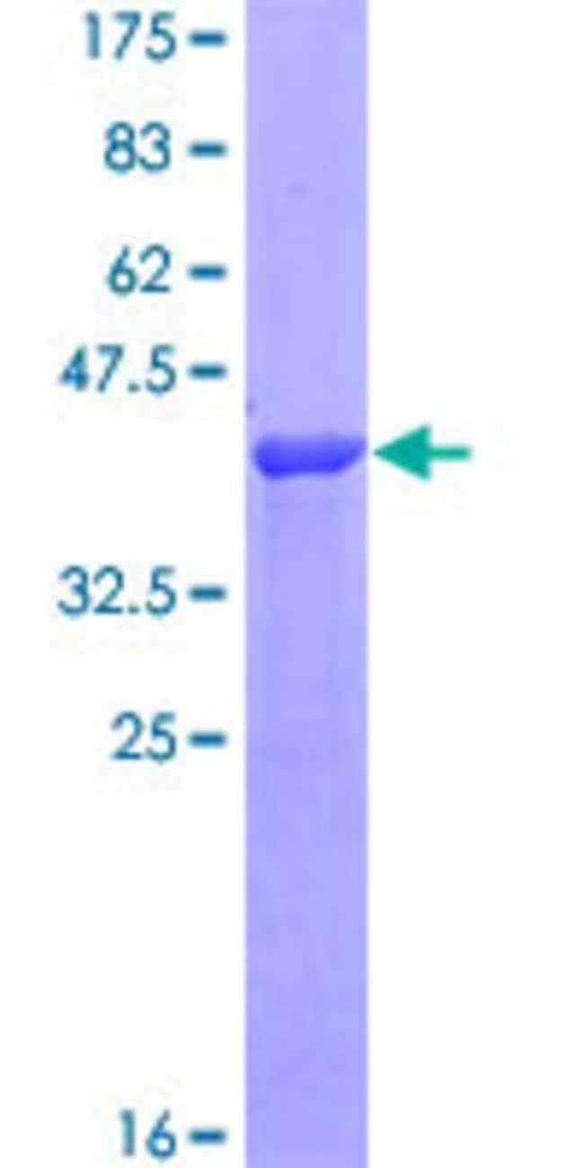 AbnovaHuman STX12 Partial ORF (NP_803173, 108 a.a. - 206 a.a.) Recombinant
