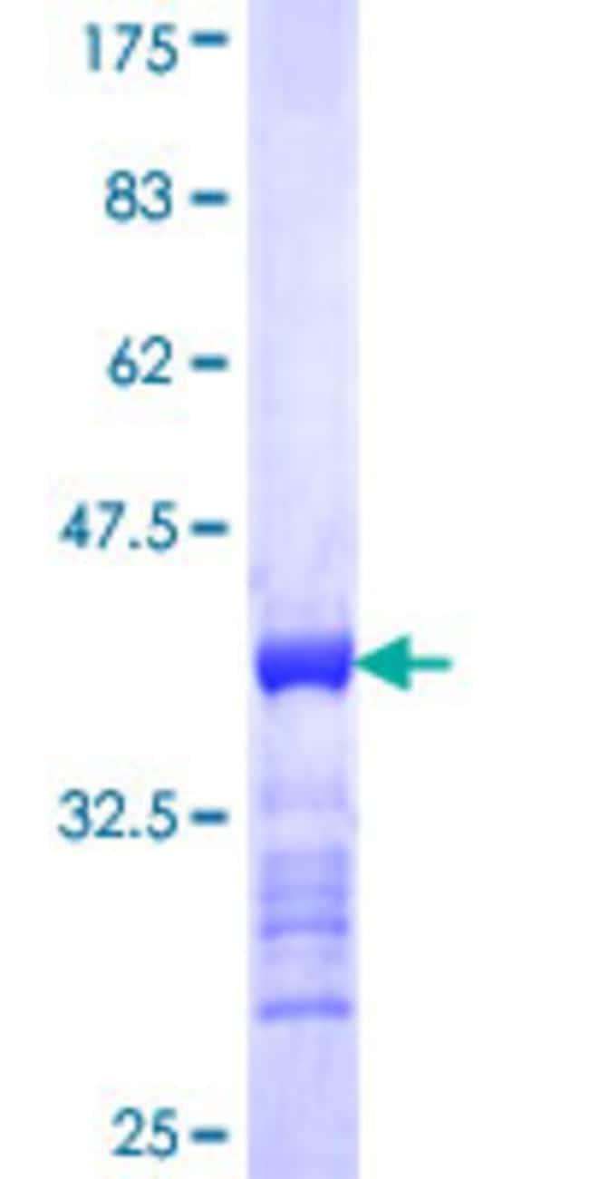 AbnovaHuman RAB38 Partial ORF (NP_071732, 115 a.a. - 211 a.a.) Recombinant