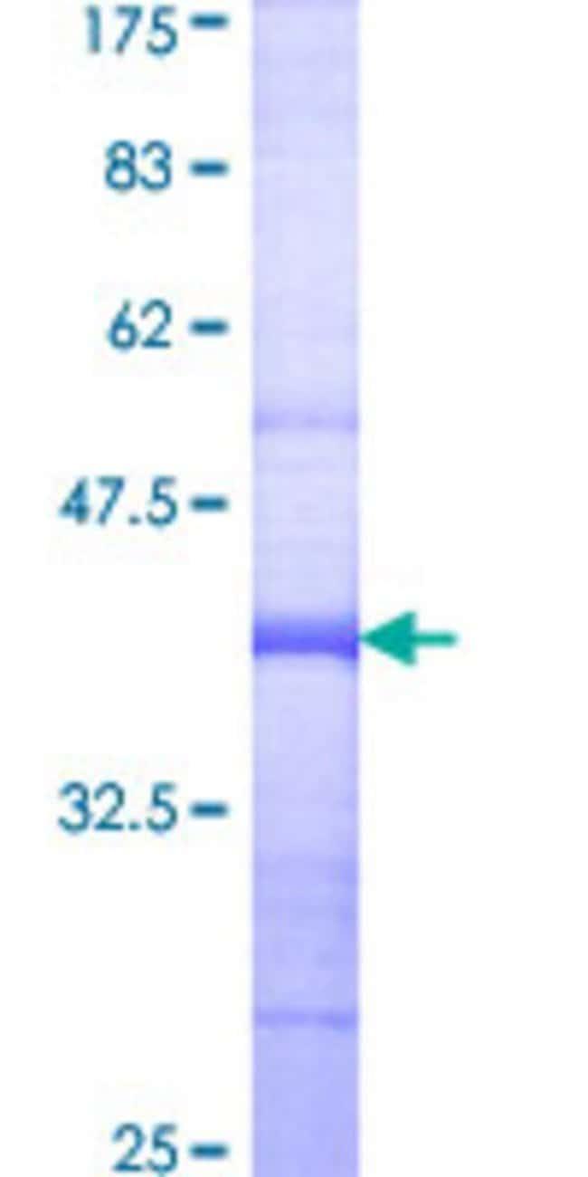 AbnovaHuman PRKD3 Partial ORF (AAH30706, 1 a.a. - 100 a.a.) Recombinant