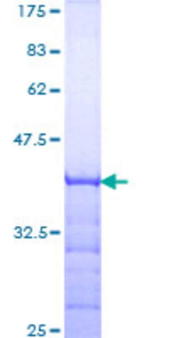 AbnovaHuman CADM1 Partial ORF (NP_055148, 151 a.a. - 250 a.a.) Recombinant