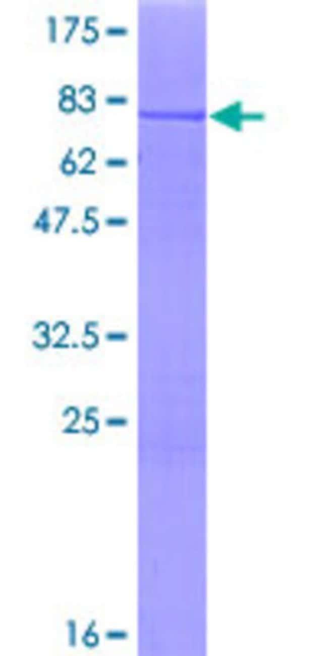AbnovaHuman CARKL Full-length ORF (NP_037408.2, 1 a.a. - 478 a.a.) Recombinant