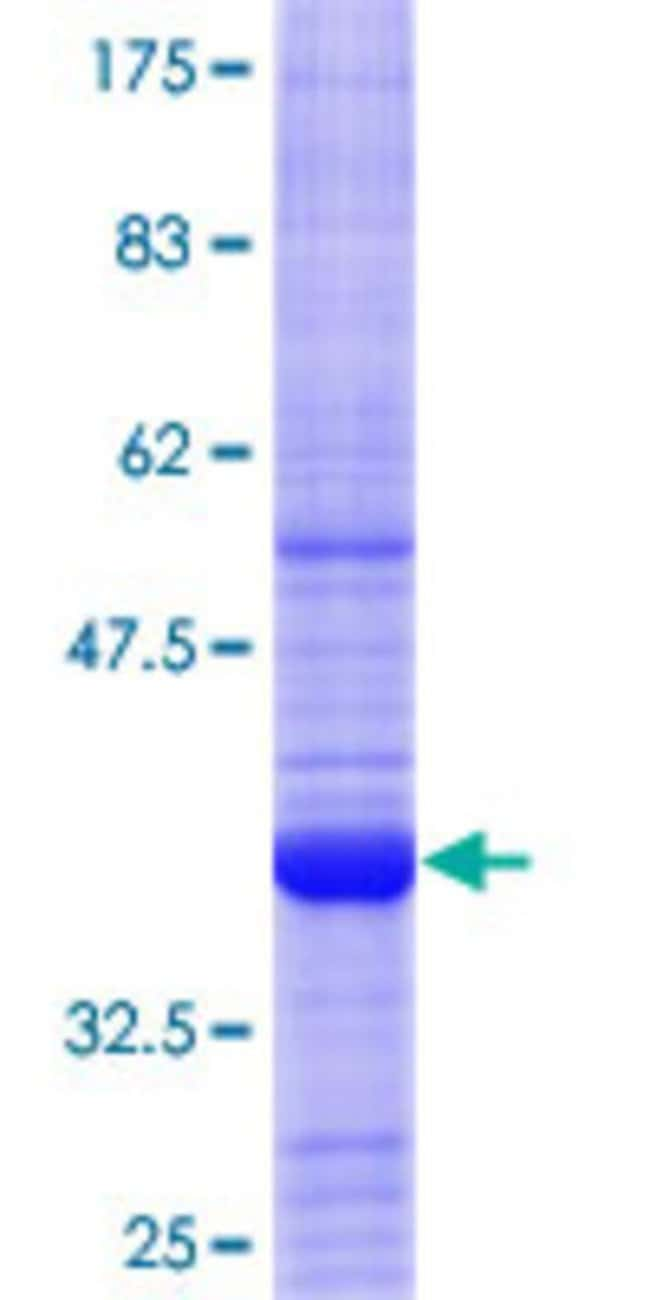 Abnova™Human AIPL1 Partial ORF (NP_055151.3, 1 a.a. - 101 a.a.) Recombinant Protein with GST-tag at N-terminal 10μg Abnova™Human AIPL1 Partial ORF (NP_055151.3, 1 a.a. - 101 a.a.) Recombinant Protein with GST-tag at N-terminal