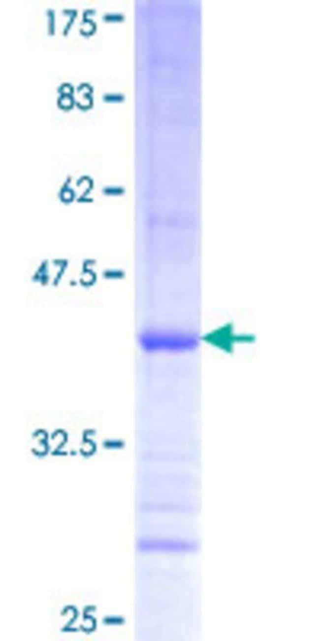 AbnovaHuman PISD Partial ORF (NP_055153, 62 a.a. - 170 a.a.) Recombinant