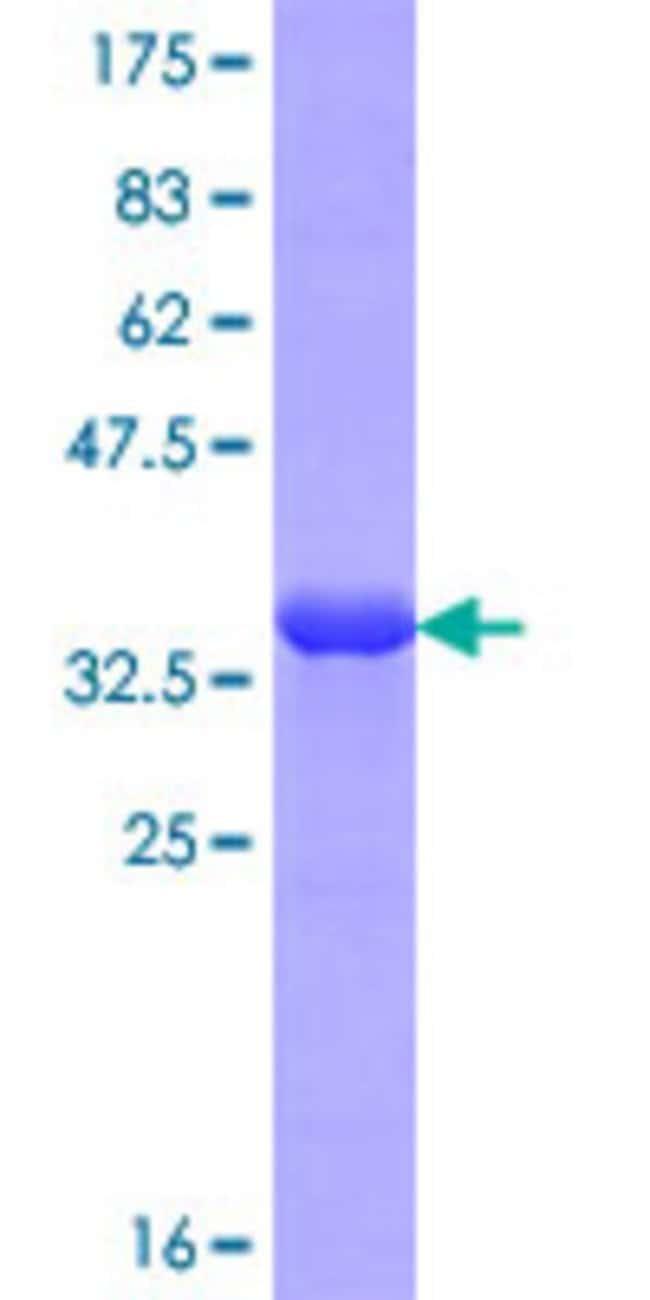 AbnovaHuman OSBP2 Partial ORF (NP_110385.1, 818 a.a. - 916 a.a.) Recombinant