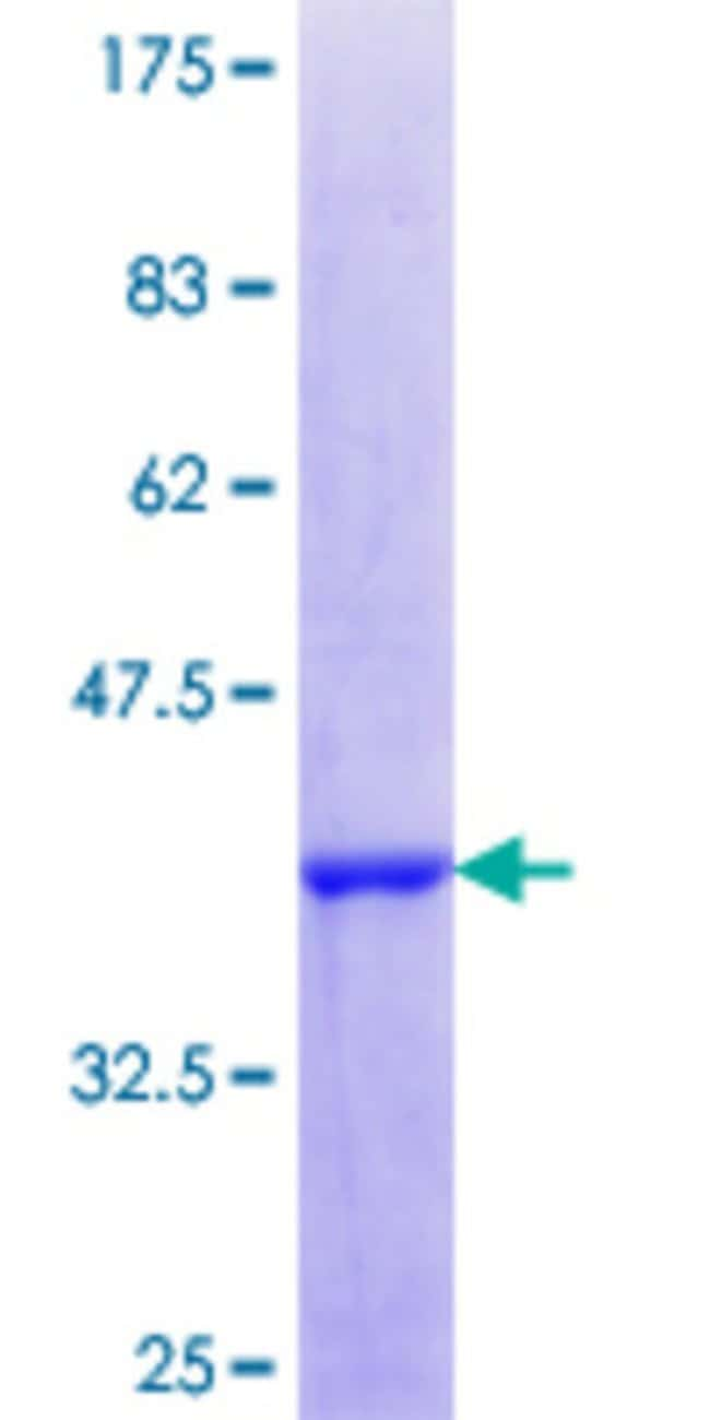 AbnovaHuman MAFF Partial ORF (NP_036455.1, 1 a.a. - 110 a.a.) Recombinant