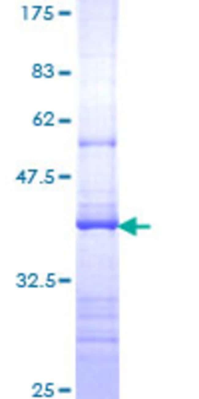 Abnova Human IL17R Partial ORF (NP_055154, 33 a.a. - 132 a.a.) Recombinant